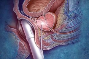 Biopsia prostática