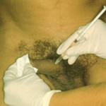 Inyección intracavernosa