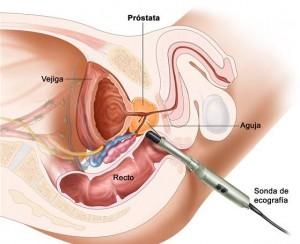 Biopsia próstata