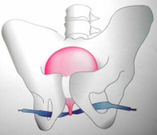 Cirugia incontinencia (TOT)2