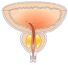 Prostatotomía