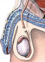 vasectomia 4